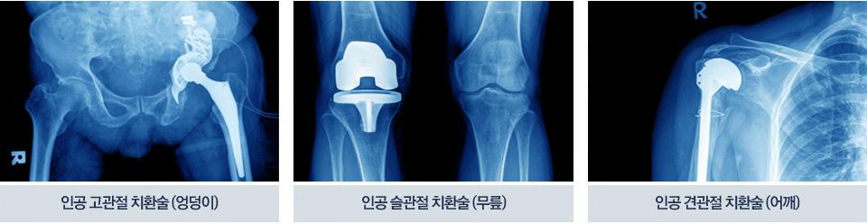 인공고관절치환술(엉덩이), 인공 슬관절 치환술(무릎), 인공 견관절 치환술(어깨)