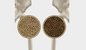 대사성골질환(골다공증)